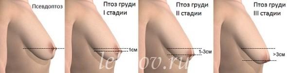 Степени птоза груди