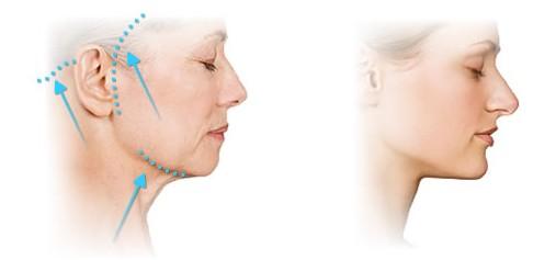 Пластика лица и шеи