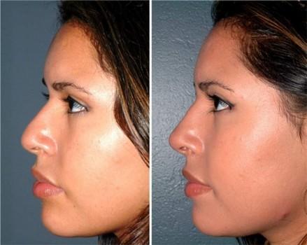 Существуют ли способы сделать нос тоньше без операции? 58