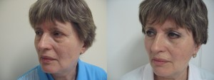 Блефаропластика (до и после)