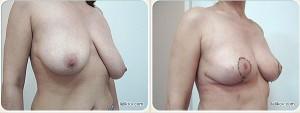 Пластика груди (до и после)