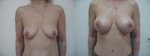 Увеличивающая пластика груди (до и после)
