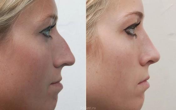 Как сделать нос красивым фото