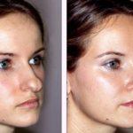 Коррекция носа, отзывы от клиентов