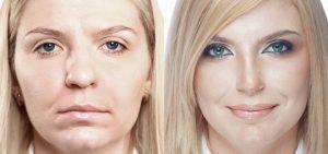 Коррекция носа в лучшей клинике