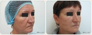Нитевые методики (до и после)