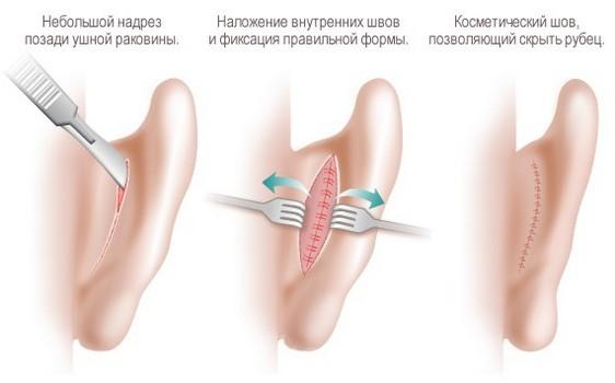 Коррекция ушных раковин (отопластика)