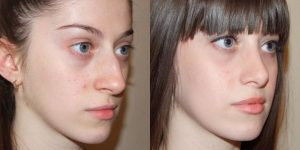 Профессиональная коррекция формы носа