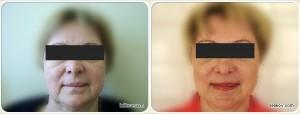 Пластика лица (До и после)