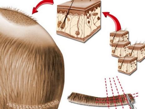 Пересадка собственных волос