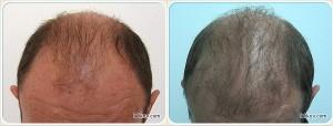 Пересадка волос (до и после)